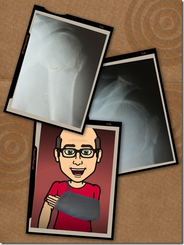 cartoon mike healing broken arm