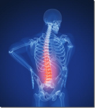 back-pain-xray