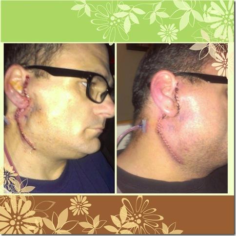 surgery scar 5 days