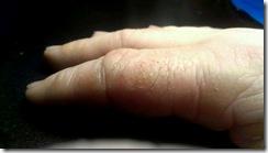dry finger
